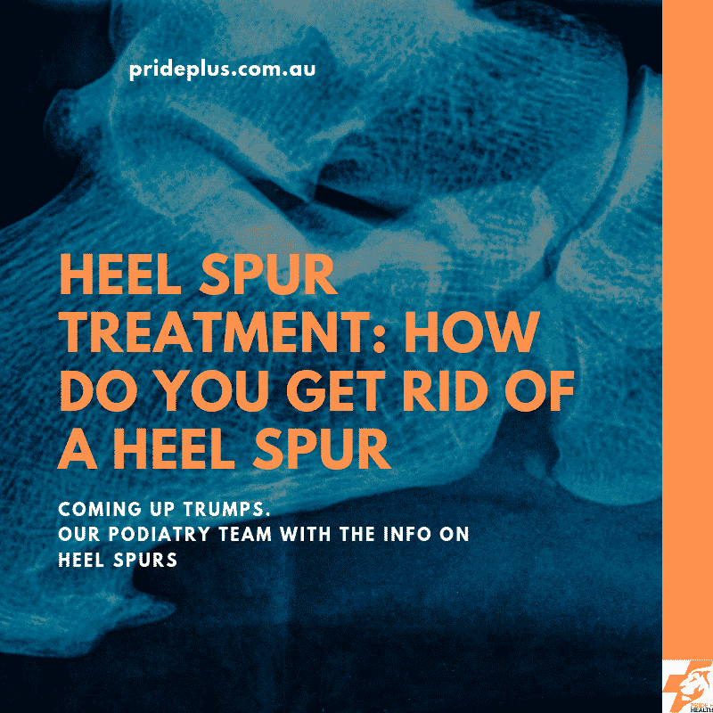 heel spur treatment