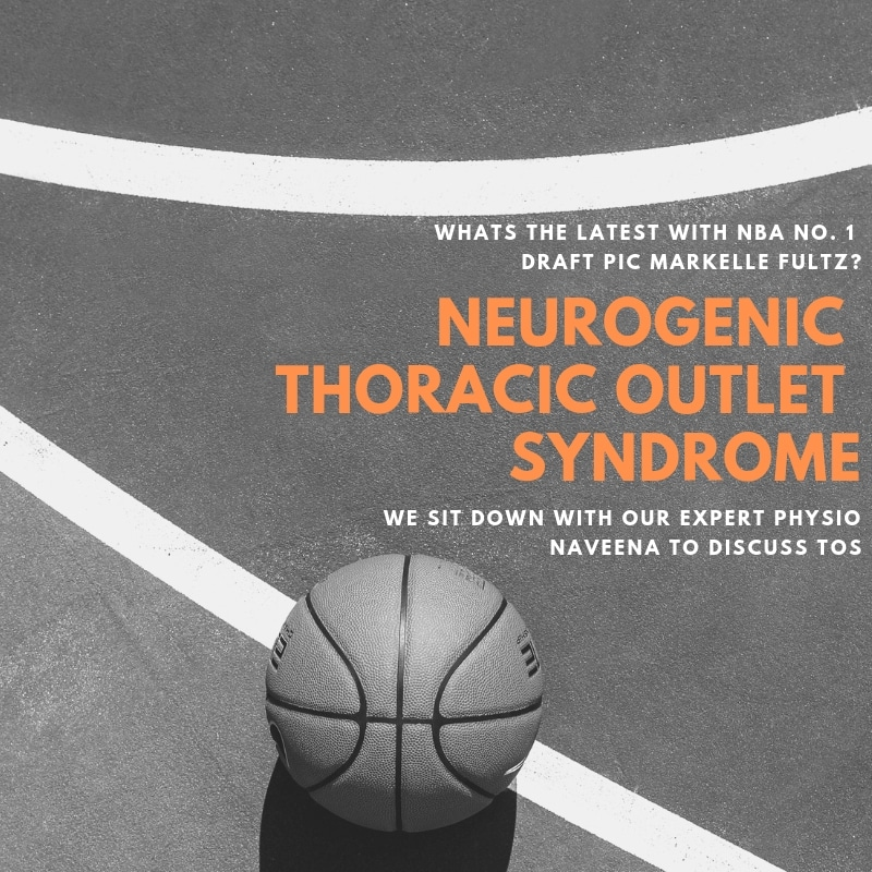 Neurogenic Thoracic Outlet Syndrome