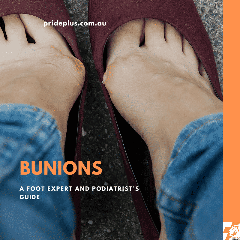 how to treat bunions a foot experts guide
