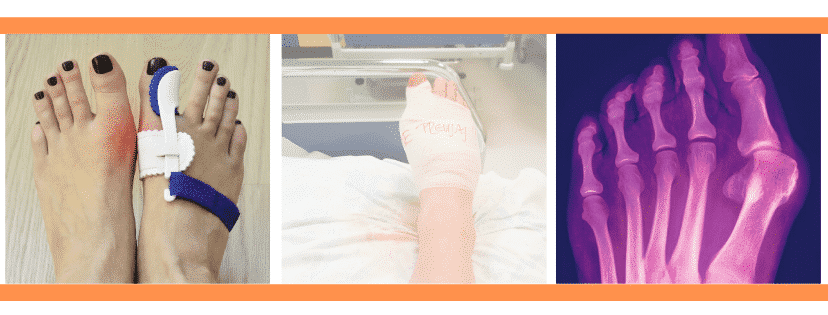 bunion photo and bunion splint and a bunion surgery image all in one
