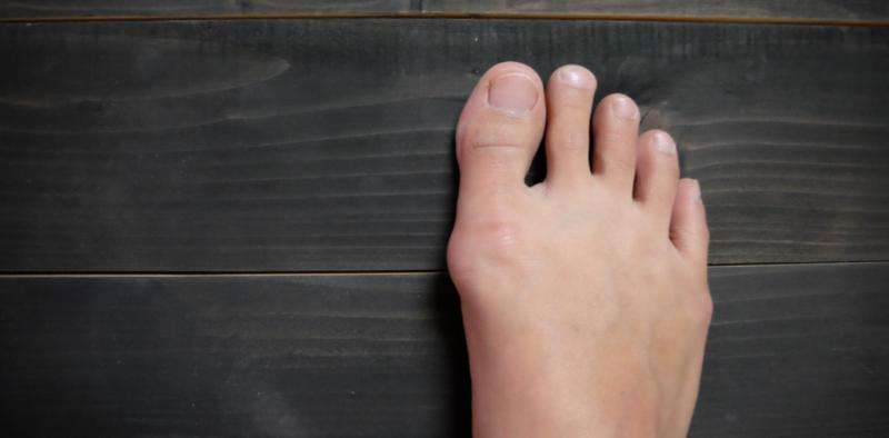 bunions treatment