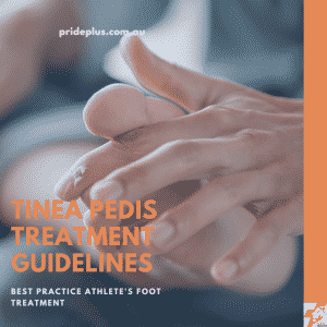 tinea pedis treatment guidelines from respected podiatrist