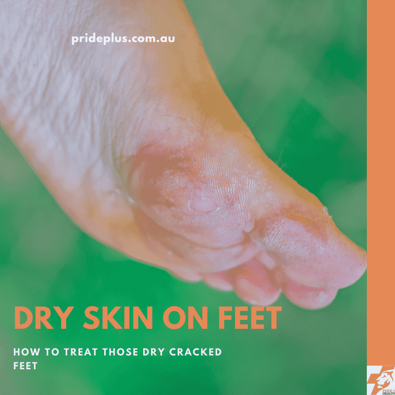dry skin on feet and text that explains how to fix dry skin on feet