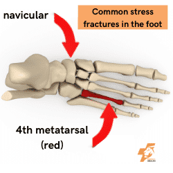 common stress fracture in the foot location are the 4th metatarsal and the navicular bone image and text