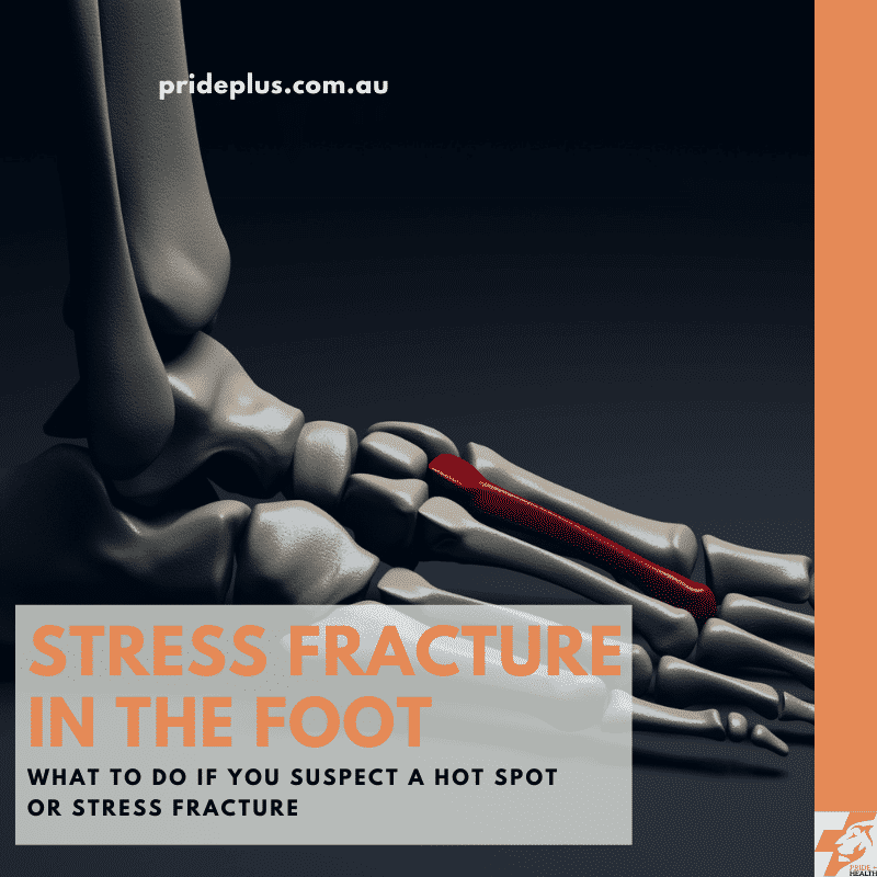 stress fracture in the foot guide of what to do from expert melbourne podiatrist