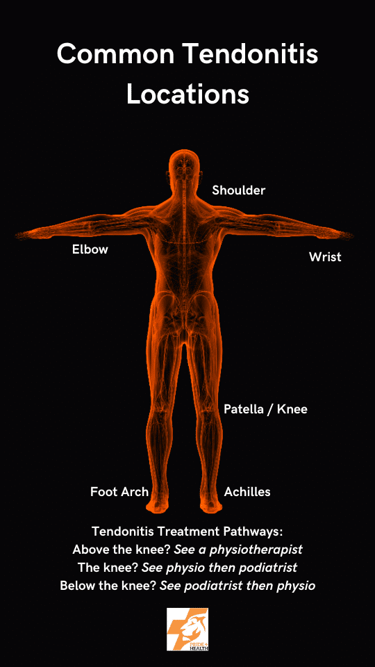 image of common tendonitis locations and who to see when you have tendonitis