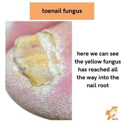 toenail fungus into the nail root