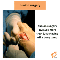 a bunion surgery being performed