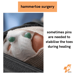 pins in toes after hammer toe surgery