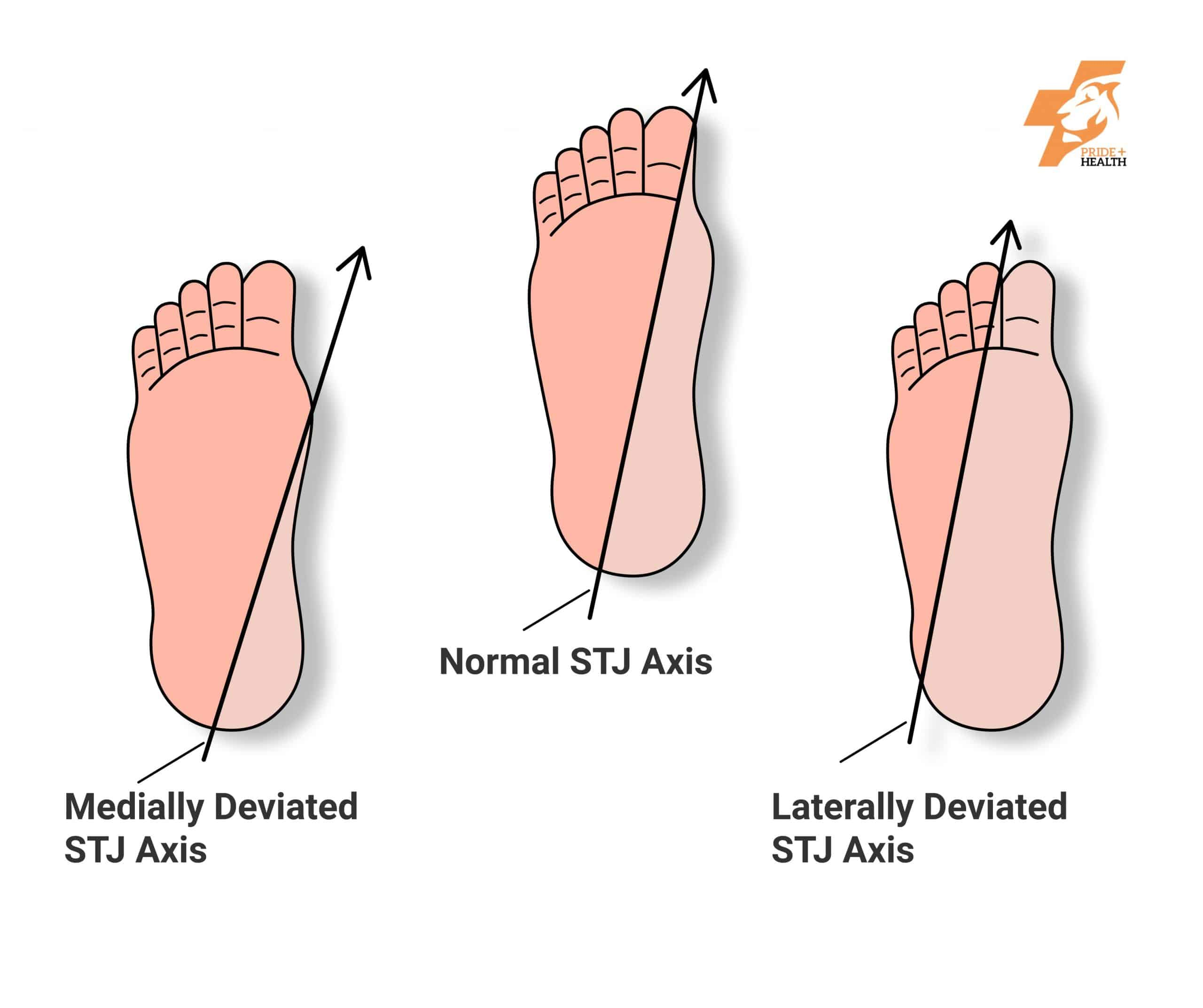 Orthotics provide support for the sub talar joint axis