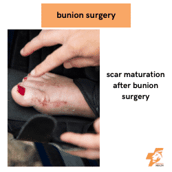 bunion healing after surgery with a pink scar evident