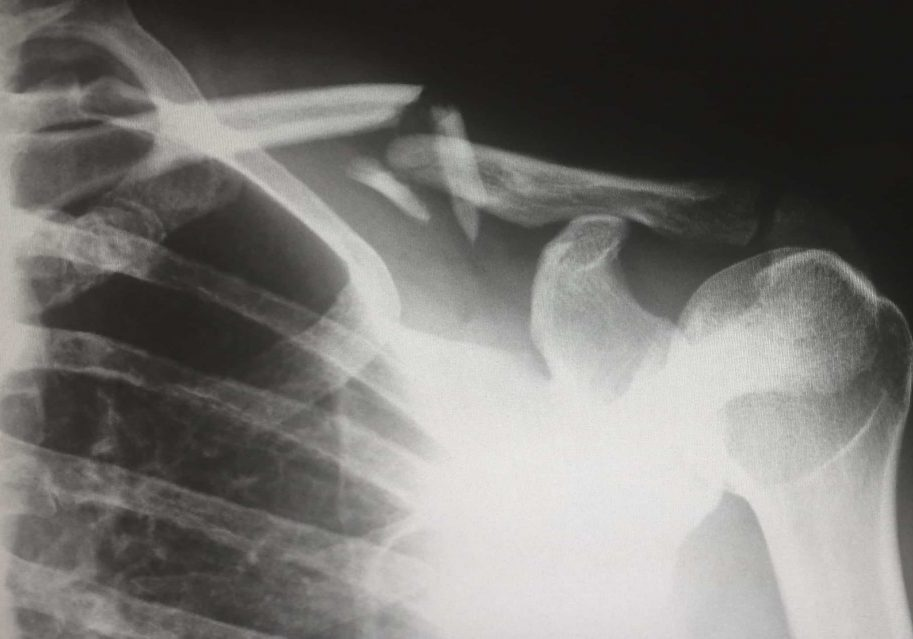 shoulder pain x ray
